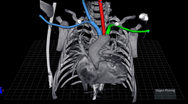 peds_aortic_arch_vessels